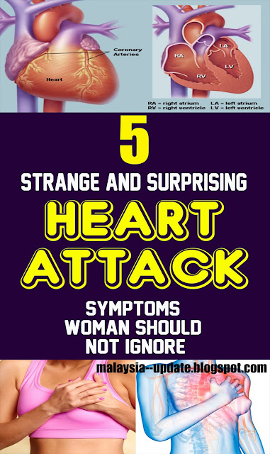 5 Strange And Surprising Heart Attack Symptoms Women Should Not Ignore