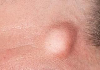 Mengenal Gejala Penyebab Dan Pengobatan Lipoma