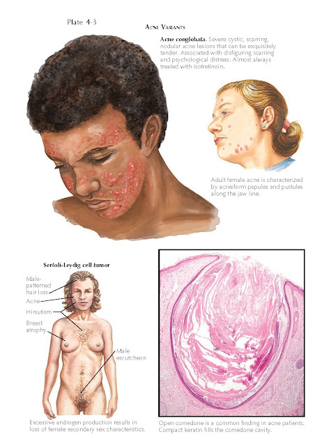 ACNE VARIANTS
