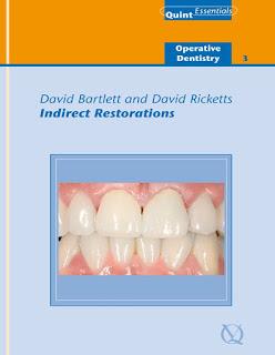 Indirect Restorations by Bartlett & Ricketts