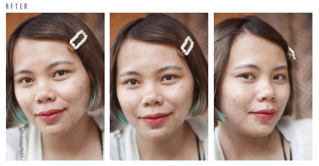 Calysta Skincare Acne Series - Demia Kamil - Beauty Blogger Bandung