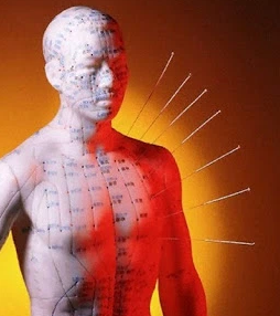 Cara Akupuntur