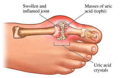 Diagram of foot with gout