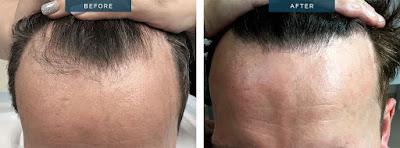 How to Grow Hair Using Technology oyehoyetech