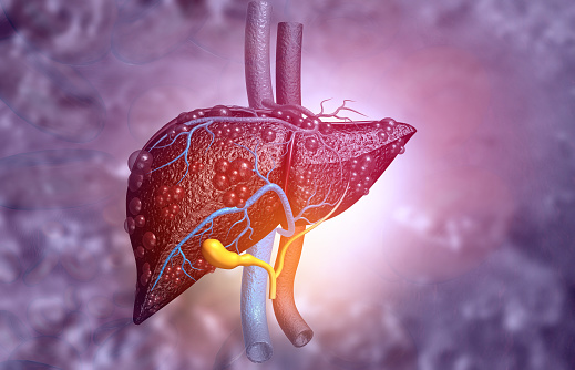 Healthy and harmful foods  for liver