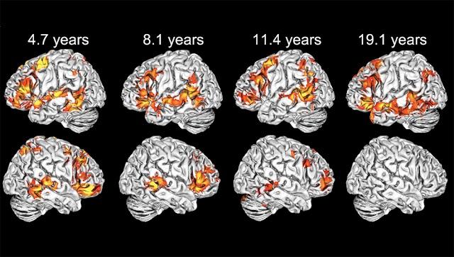 Τα παιδιά χρησιμοποιούν και τα δύο ημισφαίρια του εγκεφάλου για να κατανοήσουν τη γλώσσα, σε αντίθεση με τους ενήλικες
