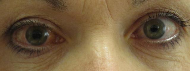 Bahaya Mata Glaukoma Dan Cara Mengobatinya