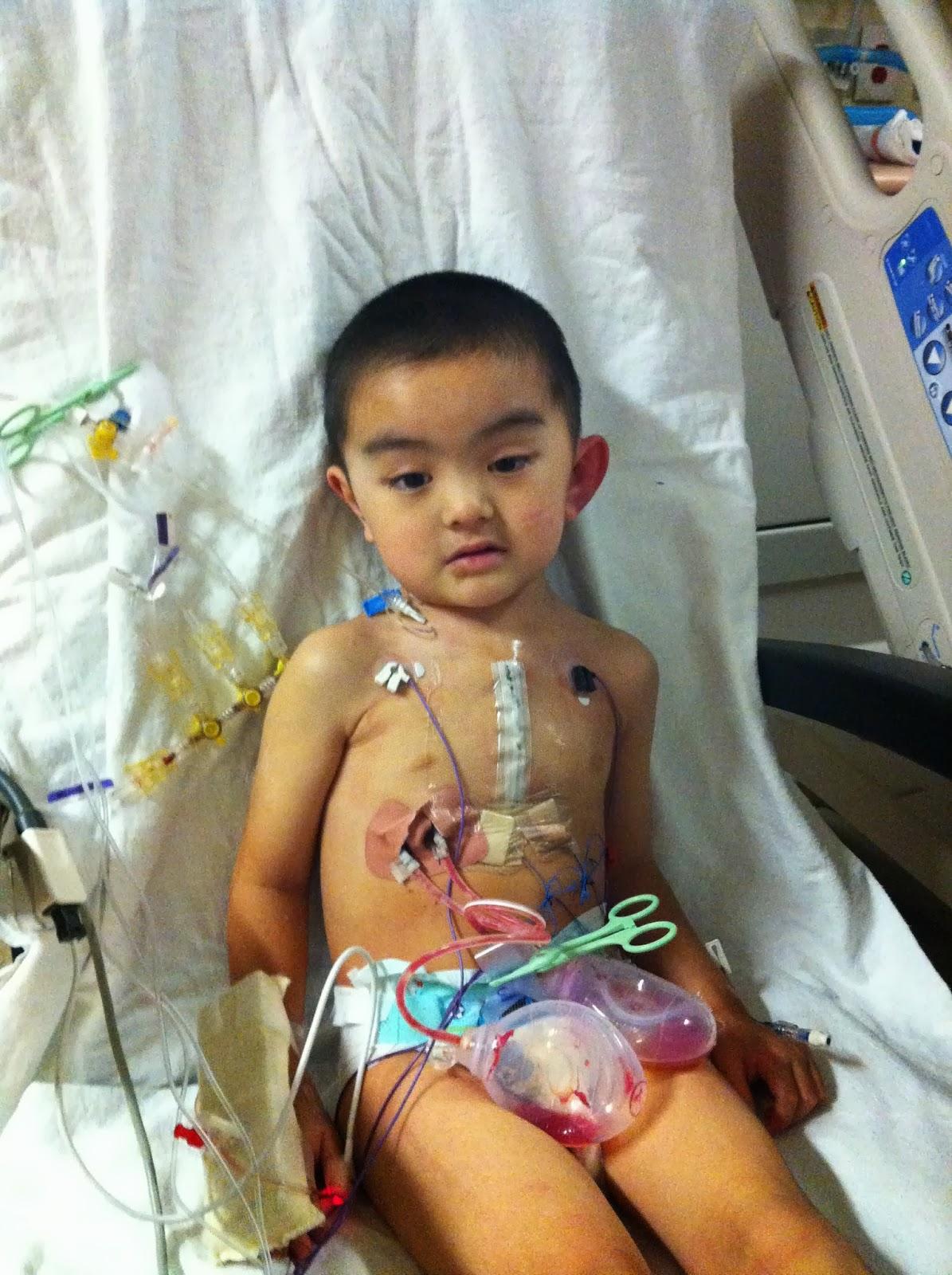 Best Chair Post Back Surgery Baby Rocker The Bypass