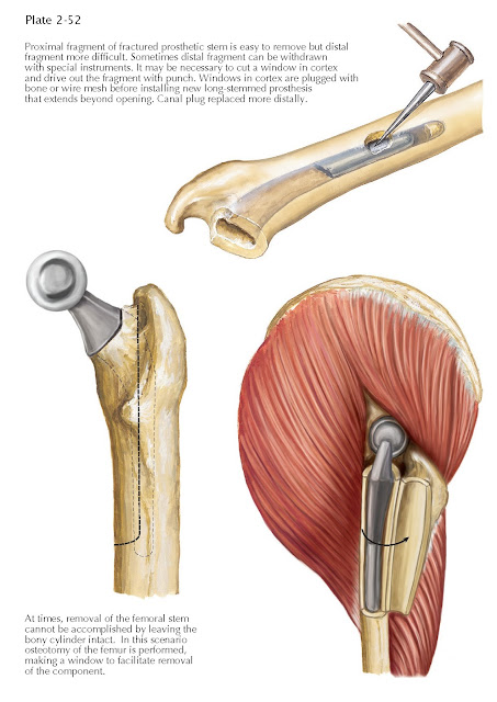 FRACTURES OF FEMUR AND FEMORAL COMPONENT