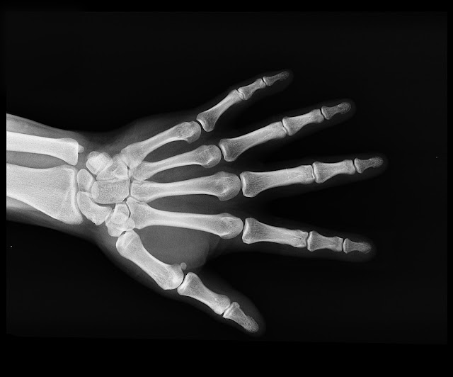 How risky are X-rays for health? - rictasblog.com
