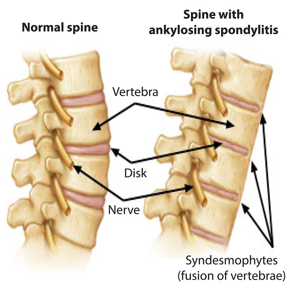 quality of life in turkish ankylosing spondylitis patients And health-related quality of life of patients  patients with undifferentiated spondyloarthritis [uspa],  in patients with ankylosing spondylitis:.