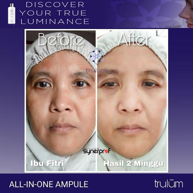 Jual Trulum Serum Anti Aging Di Samatiga Aceh Barat