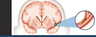 Cara Alami Mengatasi Penyakit Stroke Parah, apa gejala awal stroke yang ringan?, Bagaimana Mengobati Sakit Stroke Ringan?