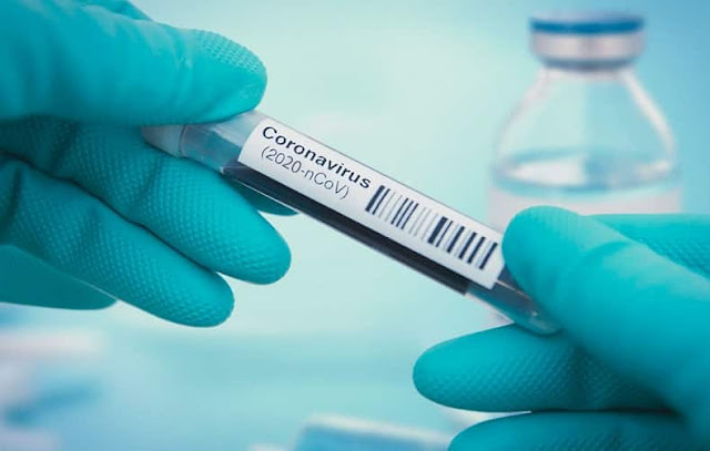 Coronavirus Vaccine could not expected until the end of 2021 said WHO Official - Saudi-Expatriates.com