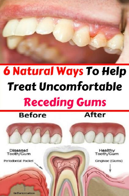 6 Natural Ways To Help Treat Uncomfortable Receding Gums