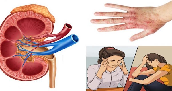 These 9 Habits That Will Seriously Damage Your Kidneys!