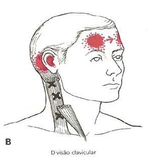 Dor de cabeça e cervical associada a dor miofascial