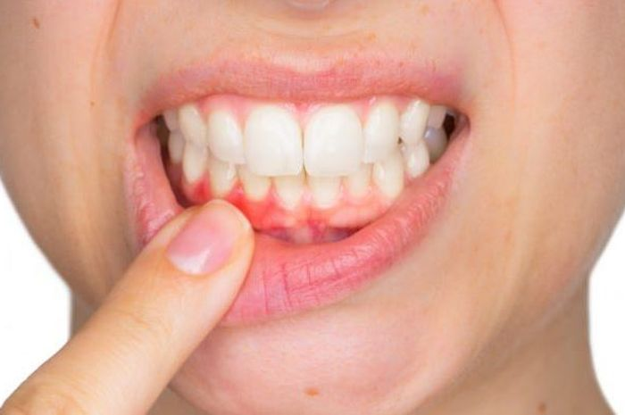 5 complications of dental avulsion that you should be aware of