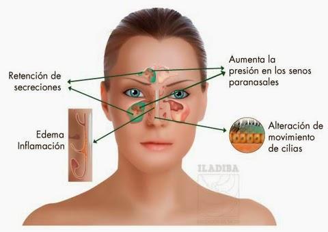 inflamacion+y+dolor+del+tabique+nasal