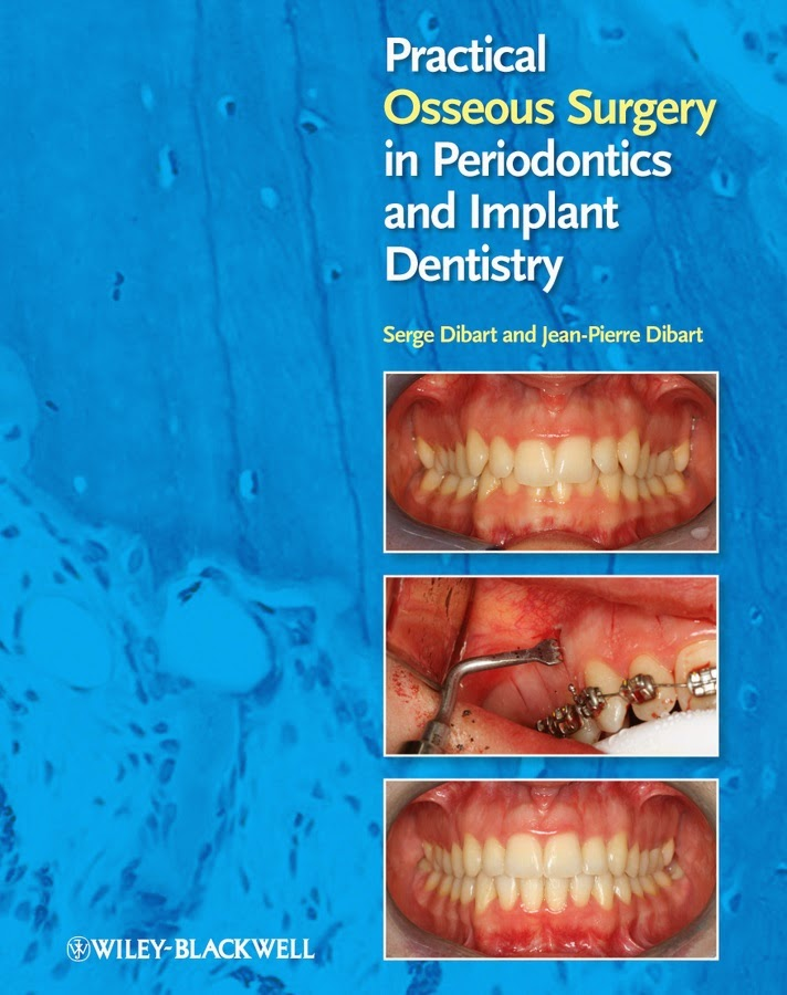 Practical osseous surgery in periodontics and implant dentistry - Serge Dibart, Jean-Pierre Dibart- 1st.ed.© 2011.pdf