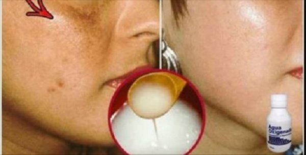 Facial Spots Will Disappear In Seconds: Try Out This Homemade Recipe