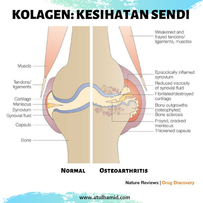 Bagaimana Cara Menghilangkan Sakit Sendi Lutut Dengan Kolagen