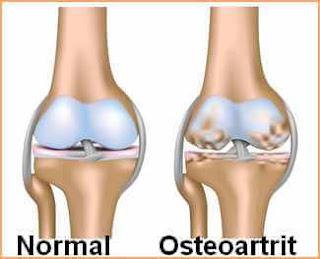 Osteoartrit tedavi