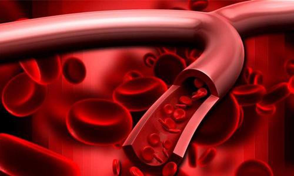 Triệu chứng biểu hiện sự lưu thông máu kém