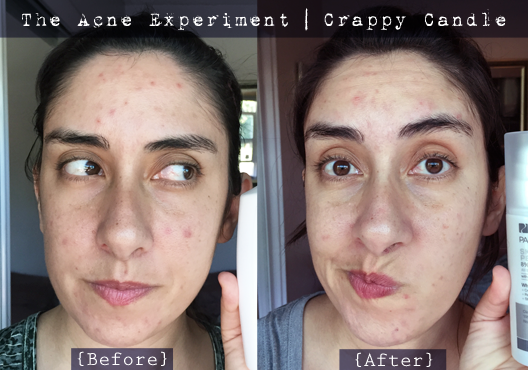 Paula's Choice Glycolic Acid Before & After - The Acne Experiment