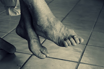 Effects of Aging on the Feet