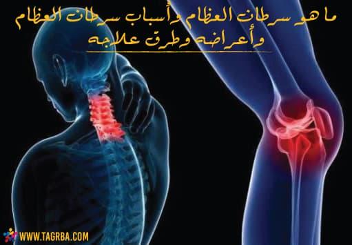سرطان العظام وأسبابه وأنواع سرطان العظام وأعراضه وطرق علاجه على منصة تجربة