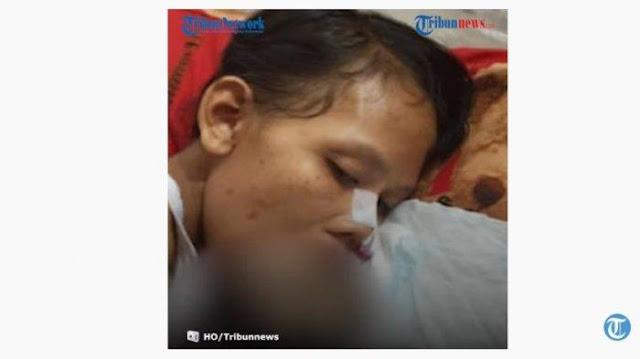 Kondisi Ilham Remaja Idap Kanker Mulut Stadium 5 Sebelum Meninggal Dunia, Ucap Kata-kata terakhir