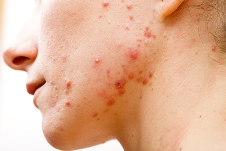 MUST READ: Say Goodbye To Acne With This Newly Invented Vaccine!