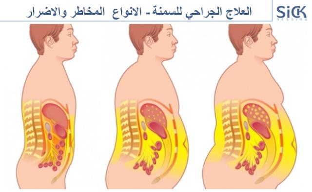 العلاج الجراحي للسمنة - الانواع  المخاطر والاضرار