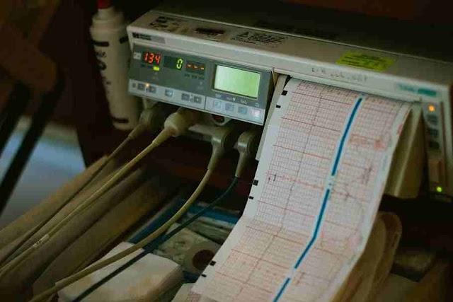 ইসিজি (Electrocardiography)