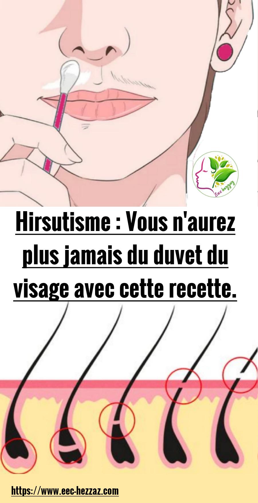 Hirsutisme : Vous n'aurez plus jamais du duvet du visage avec cette recette.