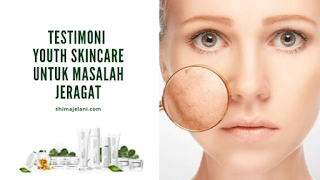 Testimoni YOUTH Skincare Untuk Masalah Jeragat