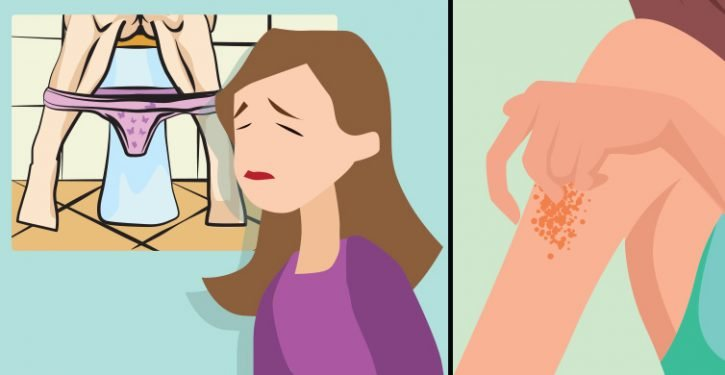 Signs That You Have Too Much Sugar In Your Blood