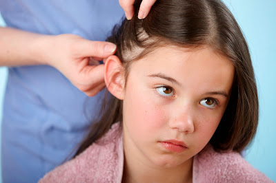 How To Treat Head Lice Naturally