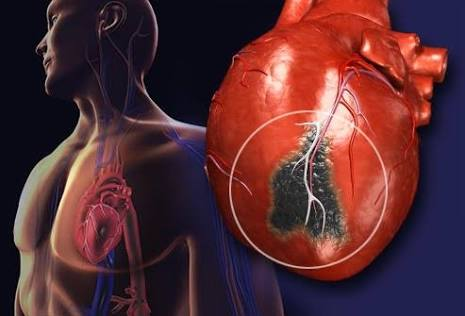 Heart Attack Symptoms: What To Do in an Emergency
