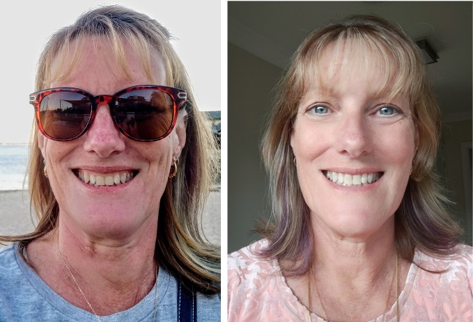 before and after tooth whitening and composite veneers July 2021