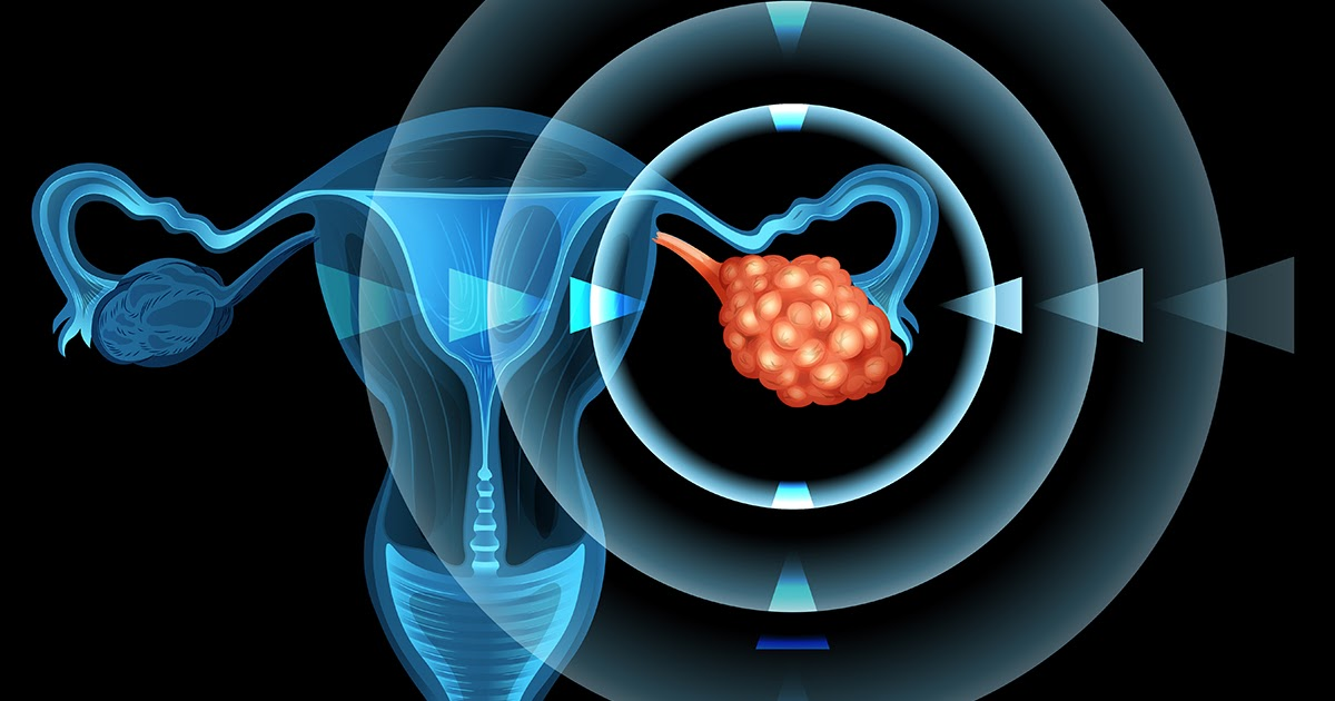 High Prevalence of Ovarian Cancer to Augment Growth of Ovarian Cancer Drugs Market