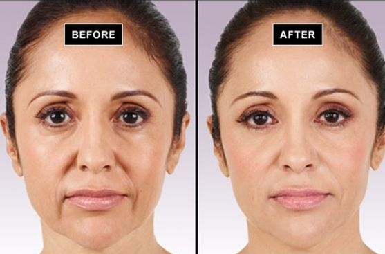 Reducing eliminating facial jowls