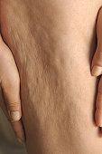 cellulite - vie - génétique - vieillisement - collagène