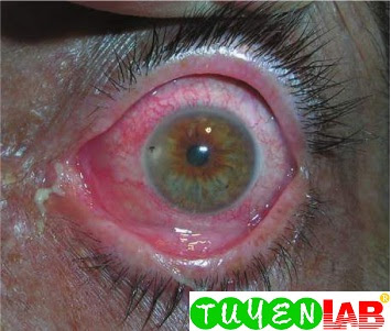 Conjunctivitis caused by a foreign body in the eye