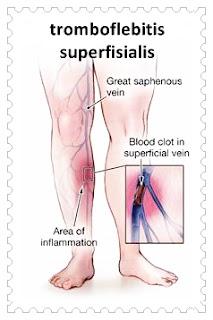 tratament tromboflebita superficiala