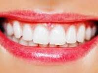 10 Cara Alami Memutihkan Gigi Dengan Mudah