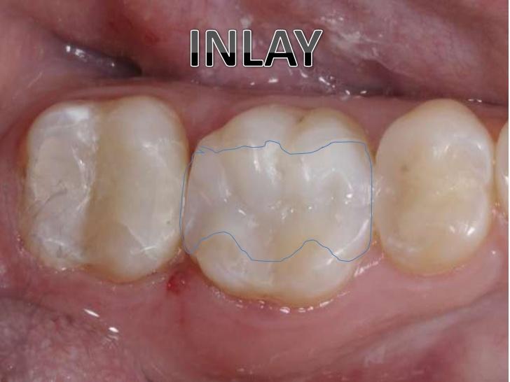 Clínica Dental Flores Rosales Incrustaciones Estéticas