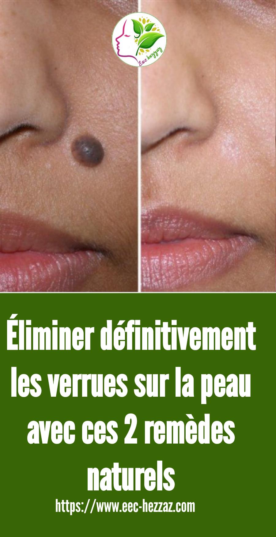 Éliminer définitivement les verrues sur la peau avec ces 2 remèdes naturels