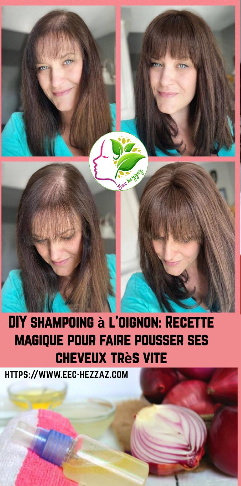 DIY shampoing à l'oignon: Recette magique pour faire pousser ses cheveux très vite